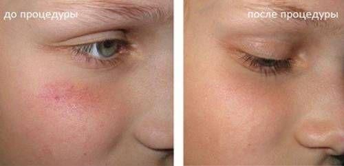 До і після лазерного видалення судин на обличчі