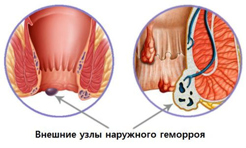 vneshnie uzly naruzhnogo gemorroja