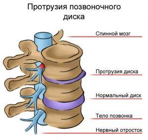 Протрузія хребетного диска