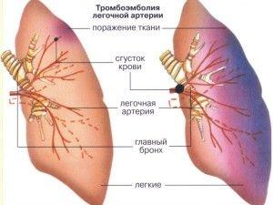 тромбоемболія