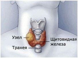 Лікування вузлового зоба щитовидної залози