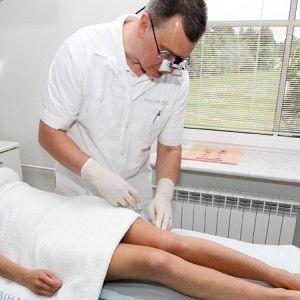 Лікування варикозу лазером: суть, особливості та переваги методу, рекомендації після процедури