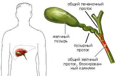 Лікування жовчного міхура лекарствамі2