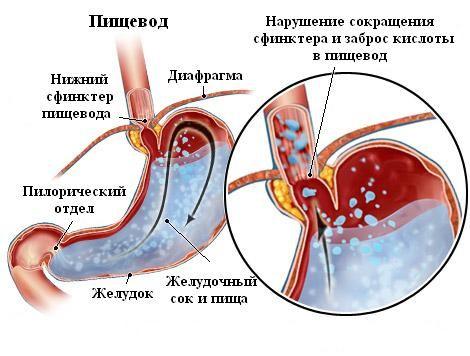 Попадання шлункового соку в стравохід
