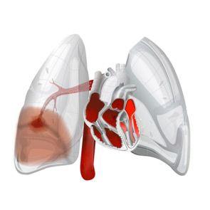 Легенева кровотеча: причини, симптоми, форми, лікування