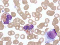Лейкемоїдні реакції крові