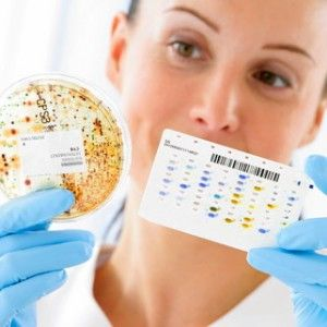 лейкоцитарна естеразами