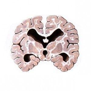 Лейкоенцефалопатія: причини, симптоми, лікування, прогноз