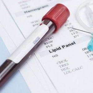 Ліпідограма: суть аналізу, що показує, норма і відхилення, як здавати