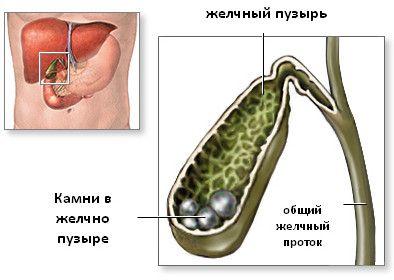 Літолітіческая терапія - розчинення каменів в жовчному міхурі