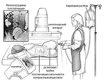 Апаратура для ирригоскопии