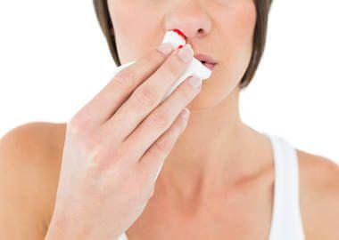 Кровотеча з носу