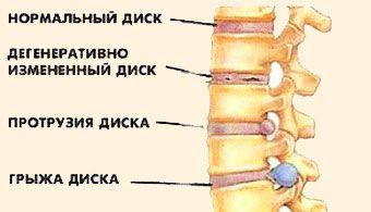 Методи лікування міжхребцевої грижі без операції