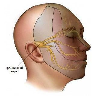 Методи лікування невралгії трійчастого нерва