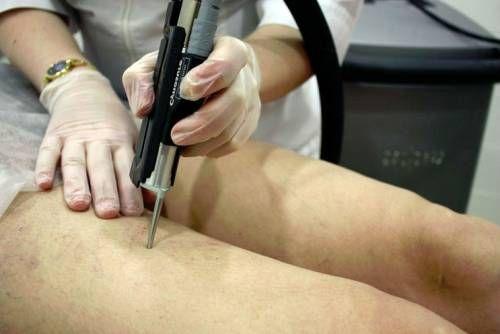 Озонотерапія судин на ногах