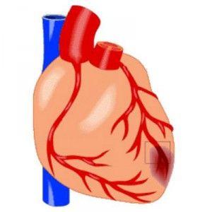 Мікроінфаркт: як розпізнати, причини, допомога, як лікувати