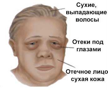 Особа хворого міксідемой