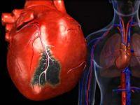 Збільшення лівого шлуночка серця
