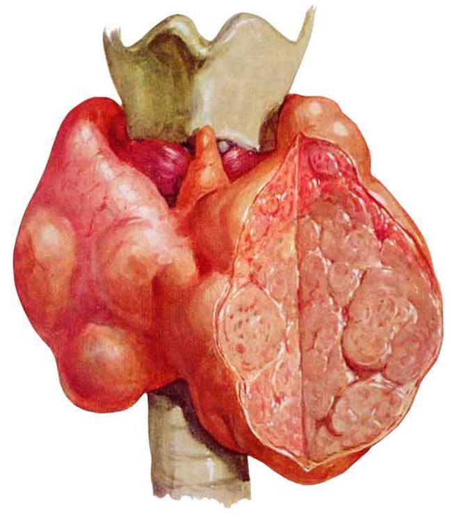 Багатовузловий зоб розширеної щитовидної залози: симптоми і лікування