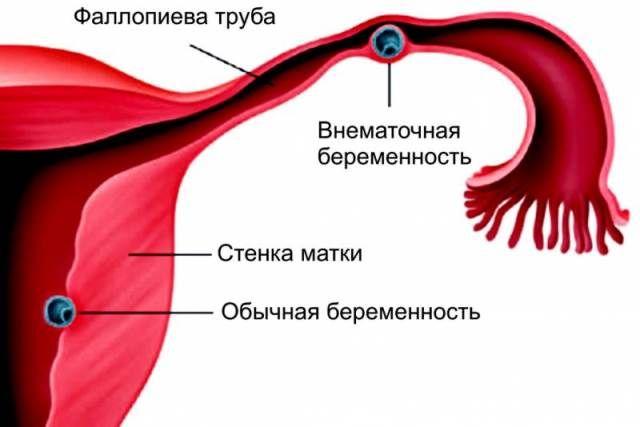 Основні причини правобічної болю при менструації