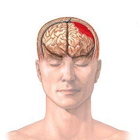 Гематома головного мозку: види, причини, симптоми, лікування, наслідки