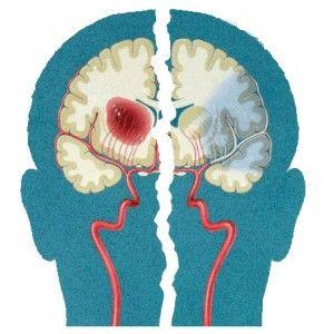Порушення артеріального кровообігу мозку: форми, ознаки, лікування