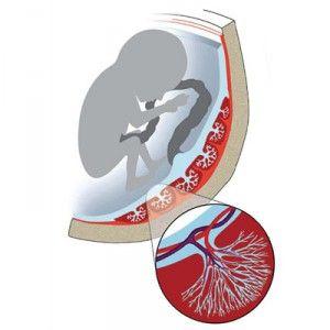 Порушення кровотоку в маткових артеріях, пуповині, плаценті при вагітності (нмпк)