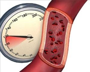нижнє артеріальний тиск лікування