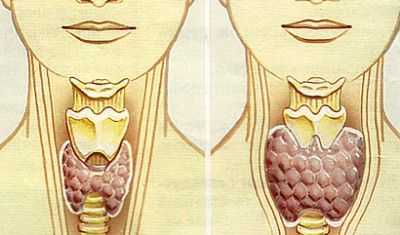 Норма обсягу щитовидної залози