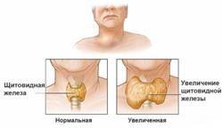 Про що говорить ситуація, коли щитовидна залоза збільшена, а гормони в нормі