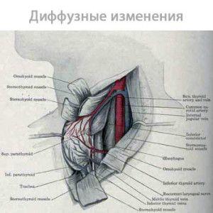 дифузнізміни