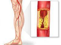 Облітеруючий атеросклероз судин ніг