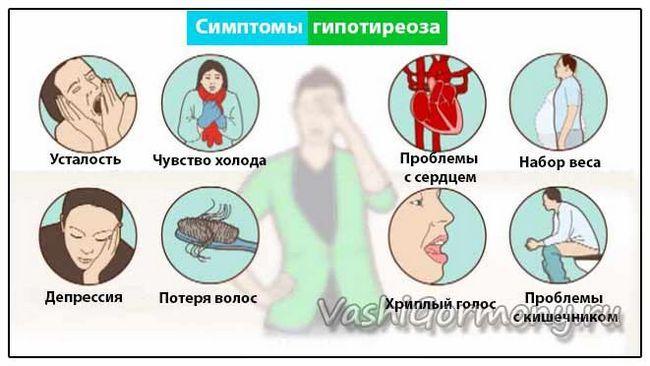 Малюнок-схема симптомів захворювань щитовидної залози зі зниженою функцією