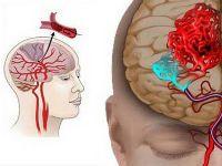 Обширний інсульт головного мозку