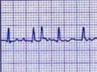 Огляд препаратів від аритмії серця
