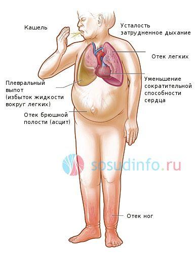 симптоми серцевої недостатності