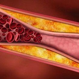 Оклюзія (непрохідність судин) - грізне прояв судинної недостатності