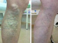 Операції з видалення вен на ногах