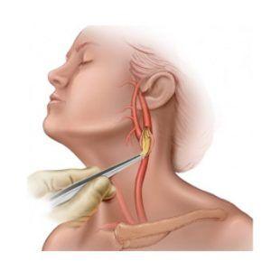 Операція на сонній артерії: коли обов`язкове, варіанти, як проводиться, ускладнення, реабілітація