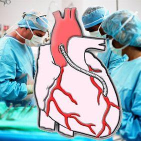 Операція з аортокоронарного шунтування серця: життя до та після