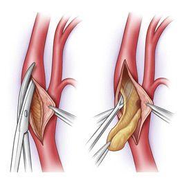 Операція з видалення холестеринових бляшок при атеросклерозі (ендартеректомія)