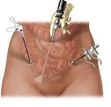 Операція з видалення міоми матки