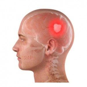 Пухлина мозку: причини, види, прояви, діагностика, як лікувати