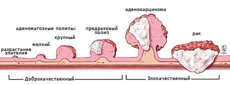 Пухлина товстої кишки