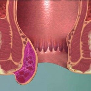 Ускладнення геморою - тромбоз і флебіт: ознаки, методи лікування, наслідки