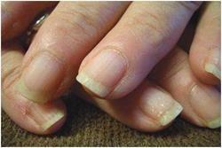 Поганий стан нігтів