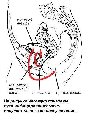 Шляхи проникнення інфекції в сечовий міхур у жінок