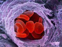 Основні симптоми тромбоцитопенії