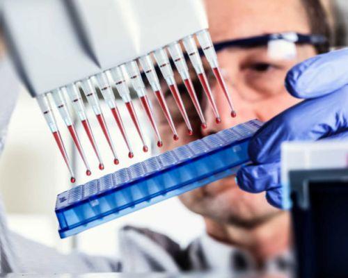 Особливості аналізу крові на виявлення паразитів (імуноферментний аналіз)