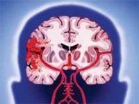 Як надати першу медичну допомогти при інсульті?